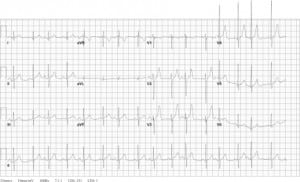 Figure 1. The patient's electrocardiogram showed a sinus tachycardia with possible left ventricular hypertrophy upon arrival to the emergency department.