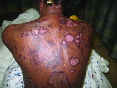 Erythema Gyratum Repens: A Rare Paraneoplastic Rash