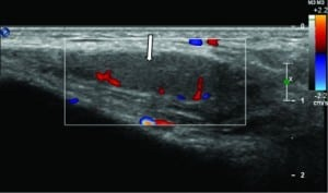Figure 3. Transverse color Doppler image of the patient's right testicle demonstrates uniform echogenicity and flow throughout the testicle.