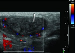 Figure 4. This transverse color Doppler image of the patient's left testicle demonstrates heterogenous echogenicity and no flow throughout the testicle.