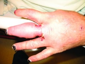 Figure 1. Photograph of the patient's hand on the day he presented to the emergency department after his ring was removed.