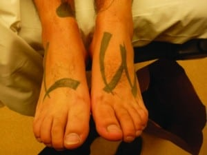 """Figure. """"LW"""" is a gang affiliation meant to be seen when wearing sandals."""