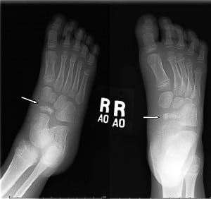 Figure. Radiograph of foot. Arrows point to the navicular bone with avascular necrosis