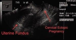 Figure 2. Transvaginal ultrasound in longitudinal plane.