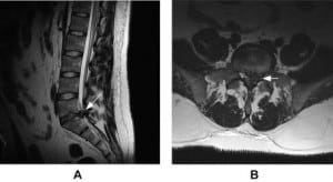 Figure. Sagittal (panel A) and axial (panel B) MRI images demonstrating large central and left paramedian disc extrusion at L5-S1 (arrows) with compression on the cauda equina.