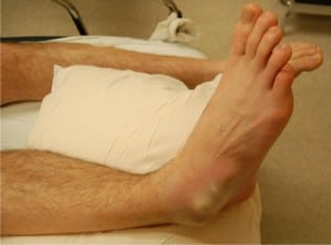 Figure 1. Right foot of a 26-year-old male with a medial subtalar dislocation