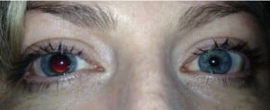Figure. Photograph of 33-year-old female presenting with asymmetric pupils.