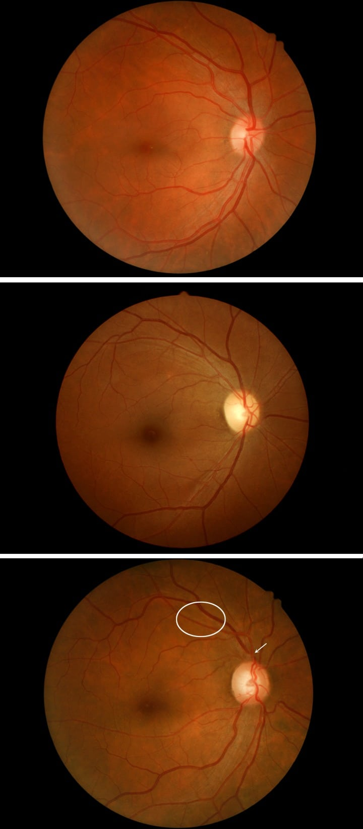 Grade III or Grade IV Hypertensive Retinopathy with Severely Elevated Blood Pressure