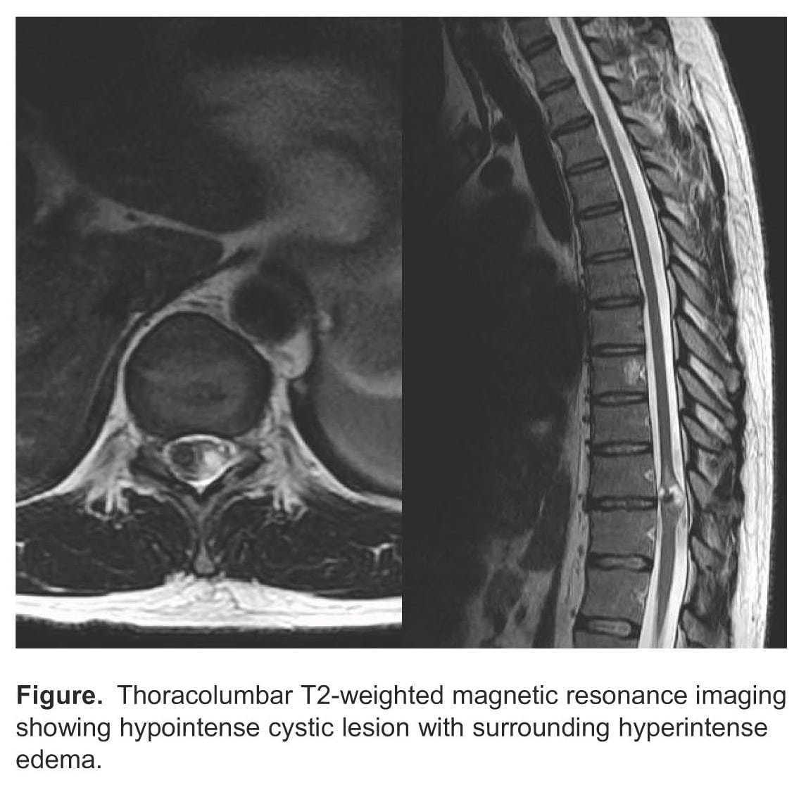 Intramedullary Spinal Neurocysticercosis Presenting as Brown-Sequard Syndrome