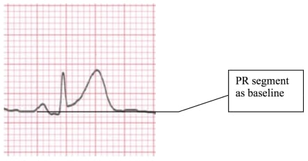EKG Criteria for Fibrinolysis: What's Up with the J Point?