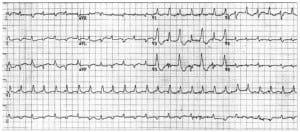 Figure 5b 12-lead ECG from a different patient demonstrating bidirectional ventricular tachycardia from digitalis toxicity. The axes of the RBBB-morphology QRS complexes alternate.