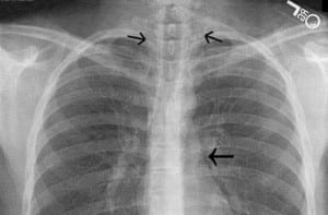 Figure 2 PA CXR showing pneumopericardium and free air in cervical soft tissues