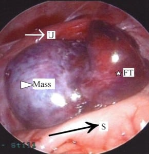 Figure 2 The torsed, ischemic left adnexa is seen between the sigmoid colon (black arrow/S) posteriorly and the uterus (white arrow/U) anteriorly. The fallopian tube (star/FT) is severely congested. The mass (triangle) has caused significant ovarian enlargement.