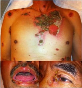 Figure. Extensive erosions and flaccid bullae associated with autoimmune blistering disorder.