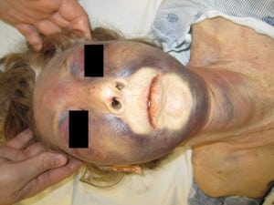 Figure. Patient with facial cyanosis and edema with cutaneous petechiae, subconjuctival hemmorhages, and echymosis across the anterior neck.