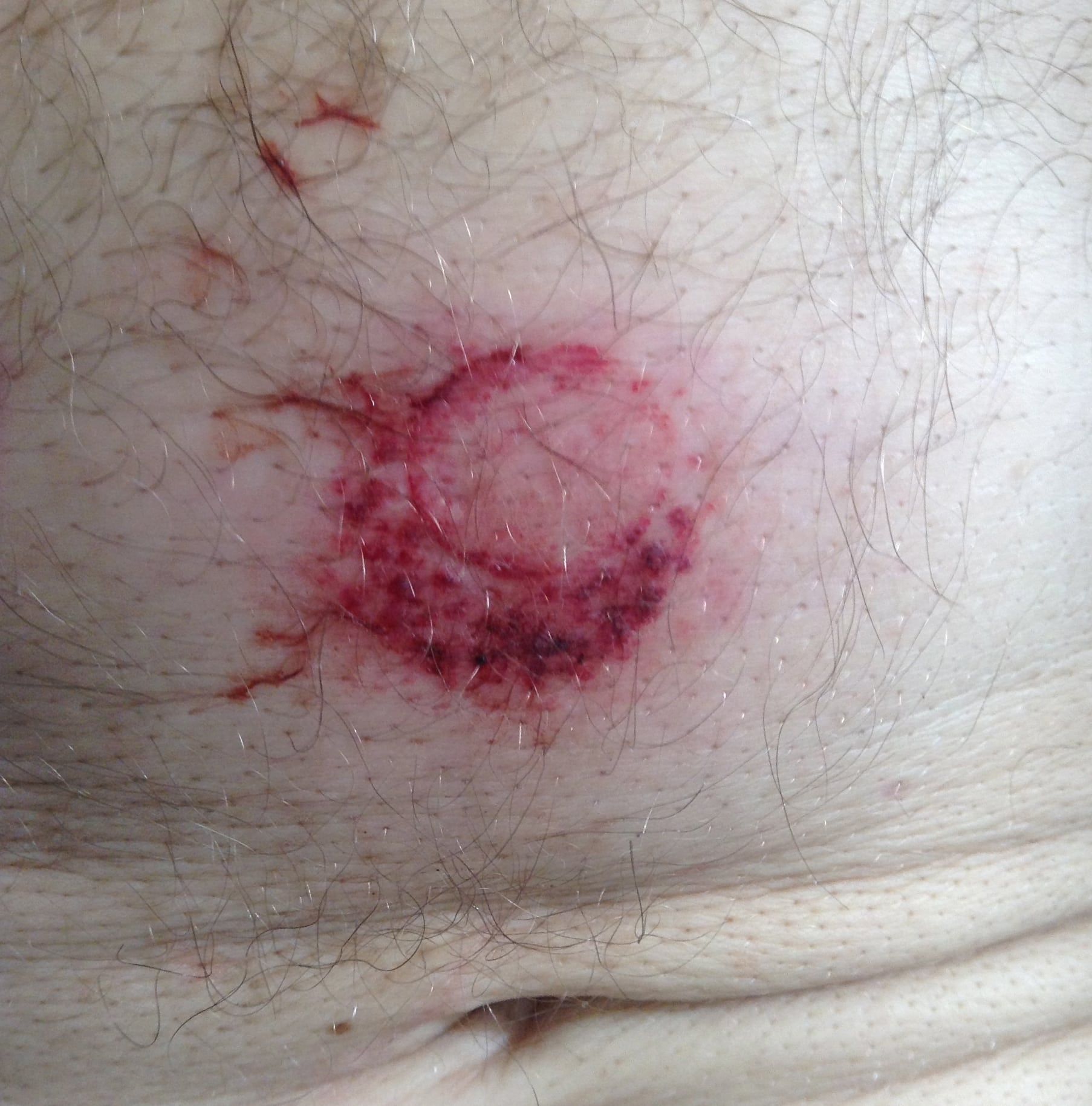 Splenic Laceration and Pulmonary Contusion Injury From Bean Bag Weapon