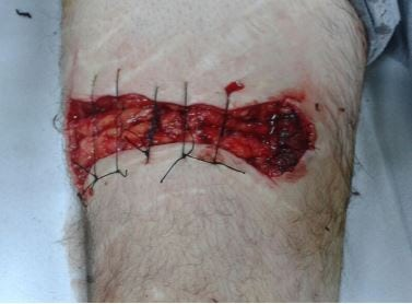 Figure 2 The laceration was sutured and left for secondary healing.
