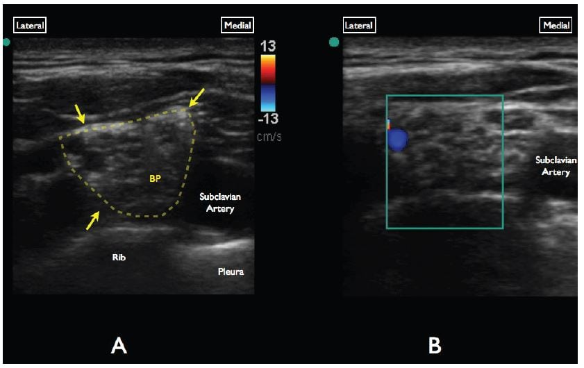 Figure 2 A, Gray-scale evaluation of the supraclavicular brachial plexus. Note the anechoic/circular nerve bundles (yellow arrows) lateral to the subclavian artery. B, Color Doppler interrogation of the brachial plexus demonstrates a vascular structure at the superolateral aspect of the brachial plexus.