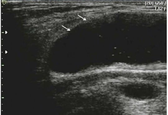 Non-thrombotic Abnormalities on Lower Extremity Venous Duplex Ultrasound Examinations