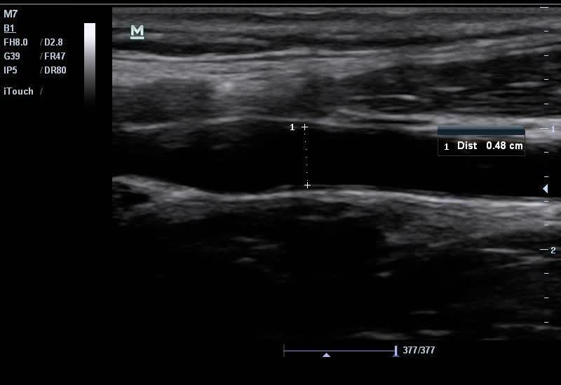 Can Emergency Physicians Perform Common Carotid Doppler ...