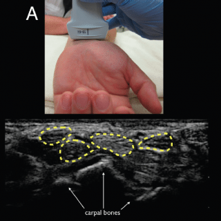 Bedside Ultrasound Identification of Infectious Flexor Tenosynovitis in the Emergency Department