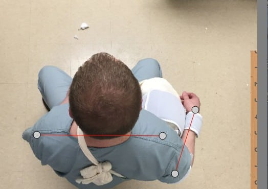 """Comments on """"Low-Cost Alternative External Rotation Shoulder Brace and Review of Treatment in Acute Shoulder Dislocations"""""""