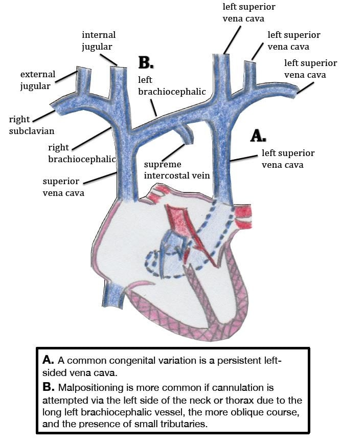 Central Venous Catheter Intravascular Malpositioning: Causes ...
