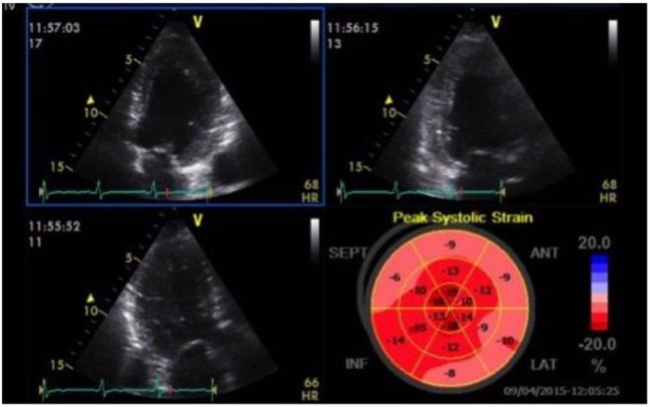 Strain Echocardiography in Acute Cardiovascular Diseases - The Western Journal of Emergency Medicine
