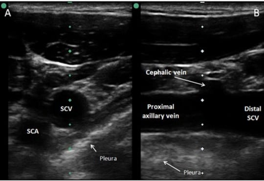 Ultrasound-Guided Cannulation: Time to Bring Subclavian Central Lines Back