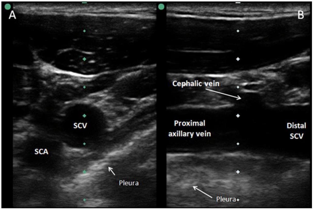 Ultrasound-Guided Cannulation: Time to Bring Subclavian Central ...
